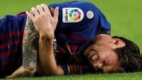 El astro del fútbol mundial sufrió la rotura del radio en su codo derecho y estará días sin jugar. Te contamos cómo es la fractura.