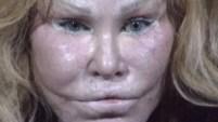 La socialité Jocelyn Wildenstein enfrenta cargos tras presunto ataque con arañazos y tijeras a su novio.