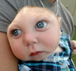 Fotos: la increíble historia del bebé con cráneo parcial
