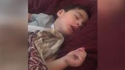 Increíble: el niño que deja de respirar cuando duerme