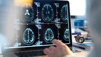 Derrames cerebrales: no ignores los síntomas y las señales
