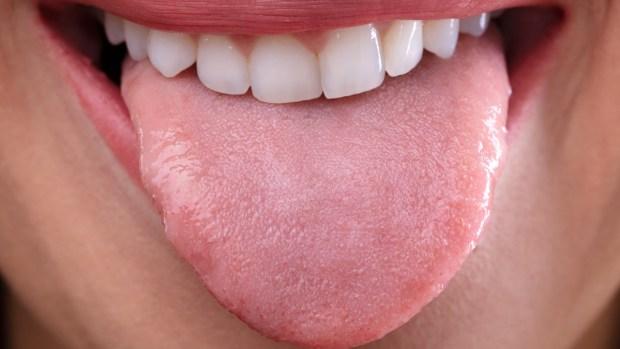 La salud y el color de tu lengua: averigua cómo estás