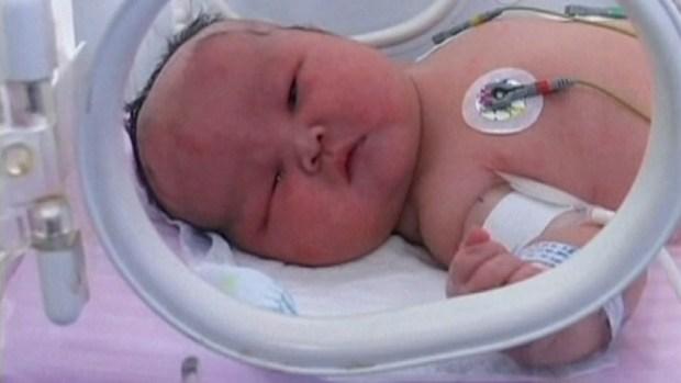 Video: Nace un bebé obeso en China
