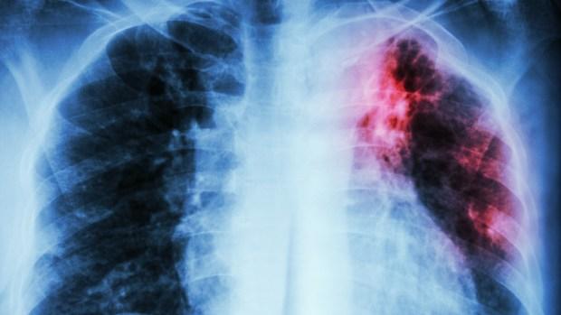 Qué es la tuberculosis y cómo te puede afectar