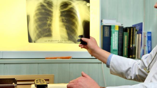 Escuela en alerta por tuberculosis
