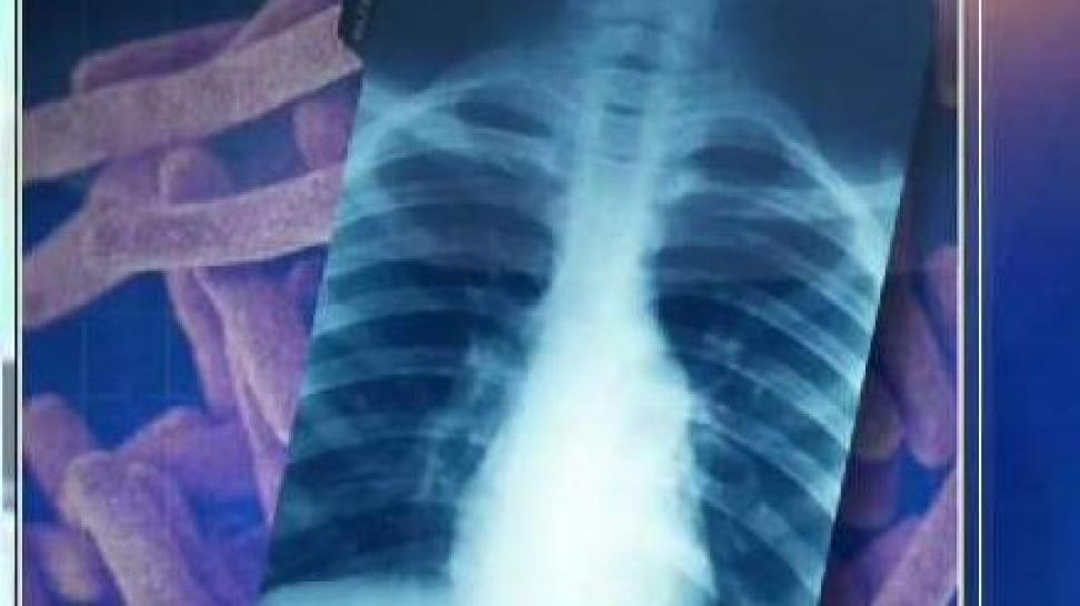Descubren caso de tuberculosis en prepa de Pearland ISD
